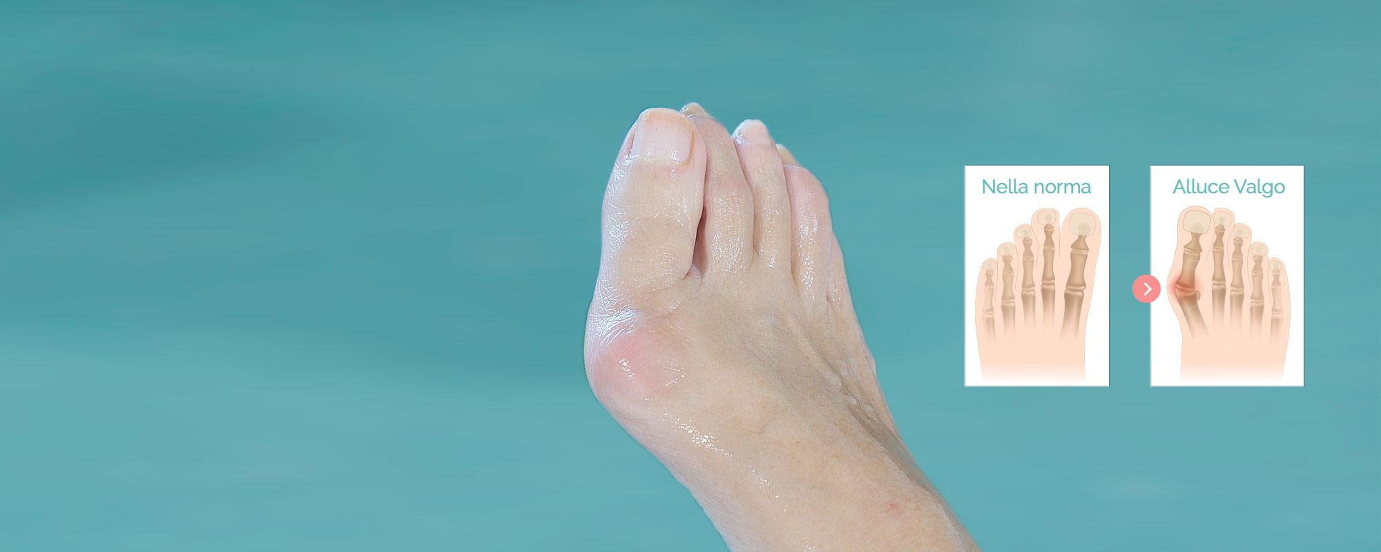 <b>Вальгусная деформация большого пальца стопы</b>